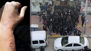HDP'li Vekil Polis Memurunun Isırdı