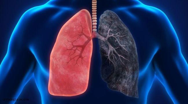 """""""Akciğer nodülü kanser işareti olabilir"""""""