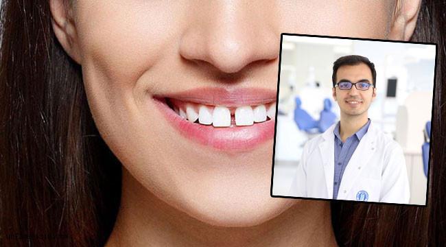 Dişlerinizdeki boşluklar yaşantınızı olumsuz etkilemesin!