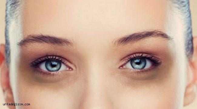 Göz altı morlukları neden oluşur?