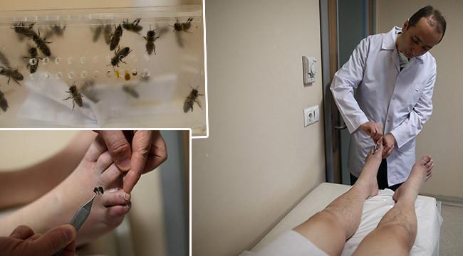 Arı iğnesi hastalıklara şifa oluyor