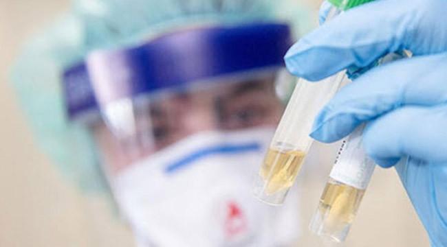 Korona virüs Azerbaycan'da da görüldü