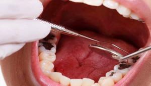 Diş çürüklerinden kurtulma yöntemleri