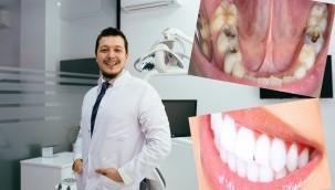Diş Çürüklerinden Kurtulmak İçin 10 adımı