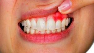 Dişeti hastalıkları sistemik hastalıkların belirtisi